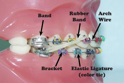 parts-of-braces